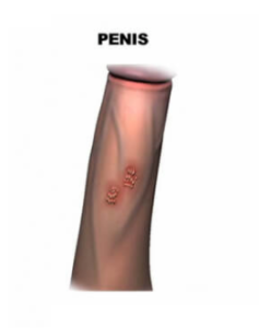 hur ser herpesblåsor ut
