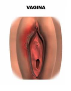 Underliv herpes Könsherpes