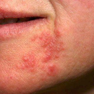 Herpes på näsan, hakan eller kinden   Kan man ha munsår där?