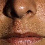munsår under näsan