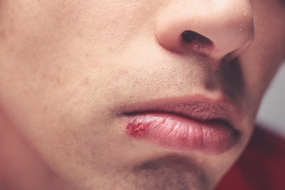 förkylningsblåsor på läppen