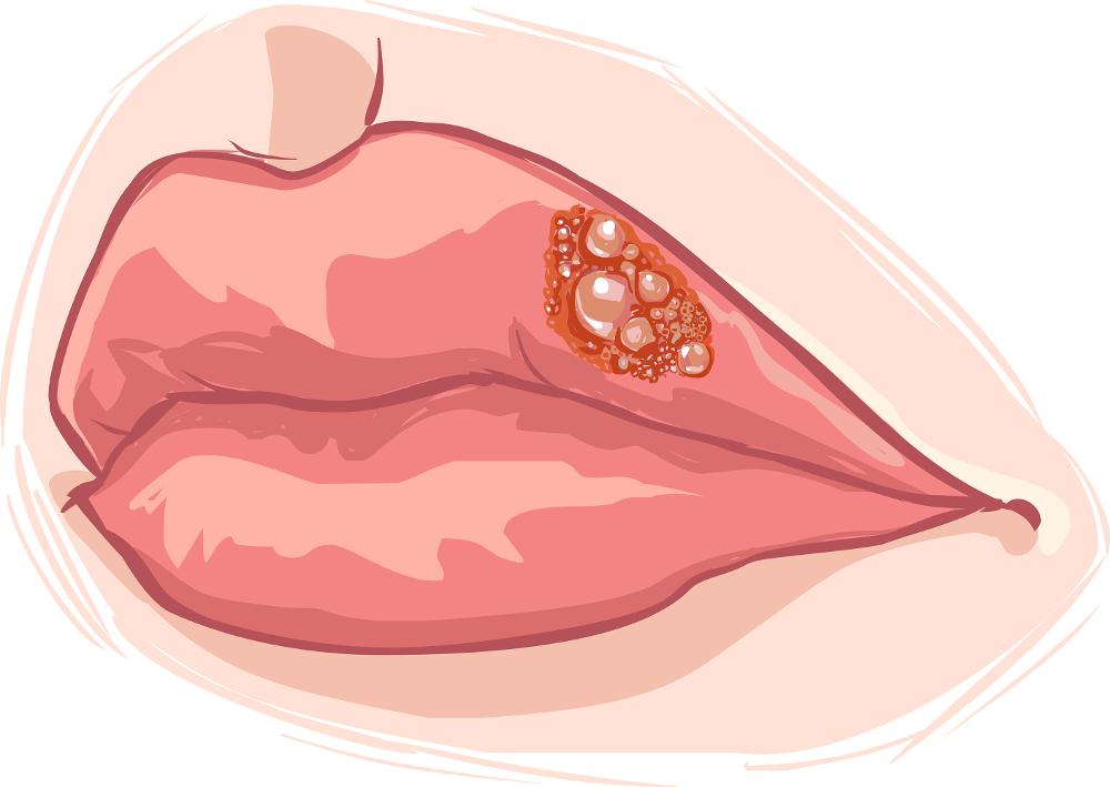 munsår-smitta